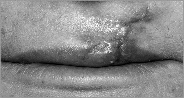 Cicatriz no lábio da Celeste