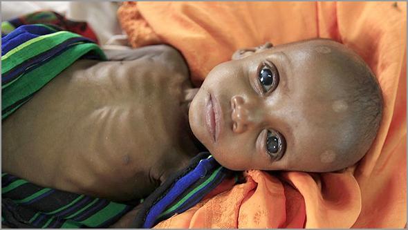 Fome e miséria em África (Foto: D.R.) - Capeia Arraiana